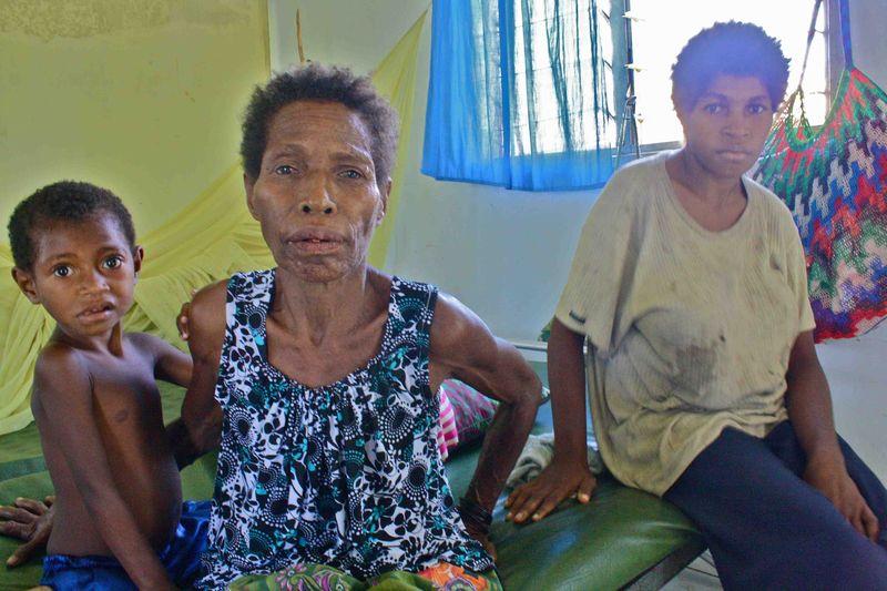 Dilung Gama & Martina Gama (mother and daughter)